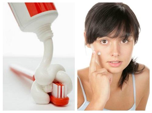 Chia sẻ 8 cách trị mụn hiệu quả tại nhà vừa an toàn lại vừa tiết kiệm