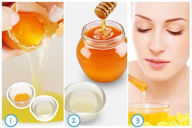 4 cách trị mụn bằng mật ong hiệu quả nhất