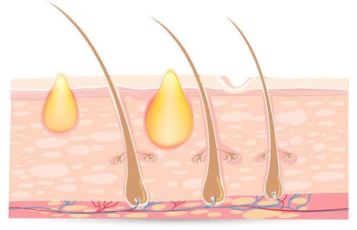 Cách trị mụn ẩn dưới da không để lại sẹo